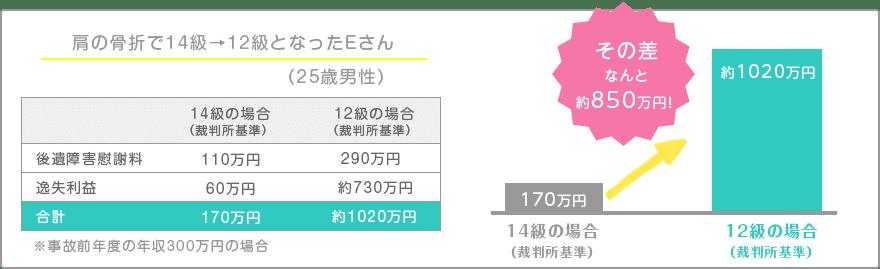 肩の骨折で14級→12級となったEさん